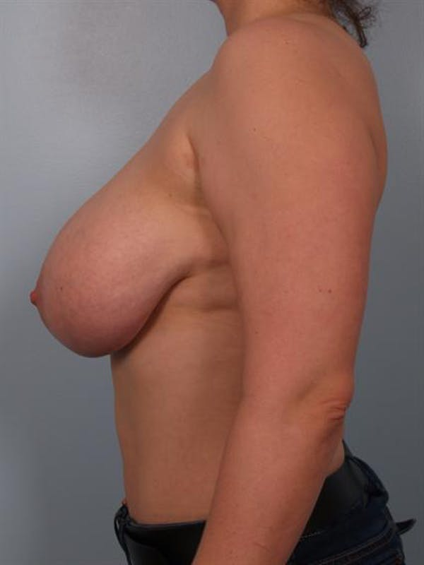 Breast Reduction Gallery - Patient 1310770 - Image 3