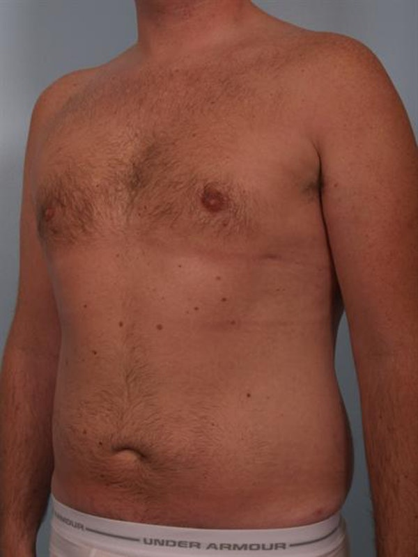 Power Assisted Liposuction Gallery - Patient 1310769 - Image 6
