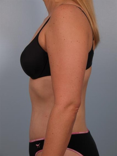 Tummy Tuck Gallery - Patient 1310767 - Image 6