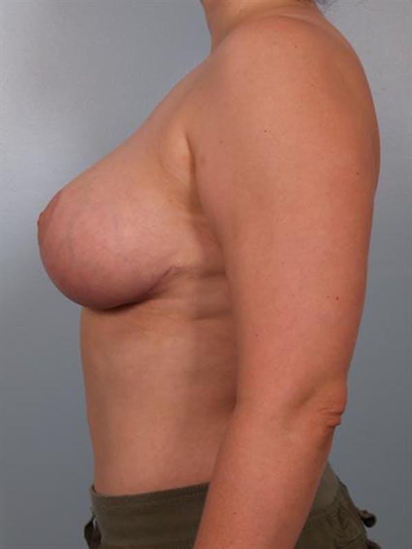 Breast Reduction Gallery - Patient 1310770 - Image 4