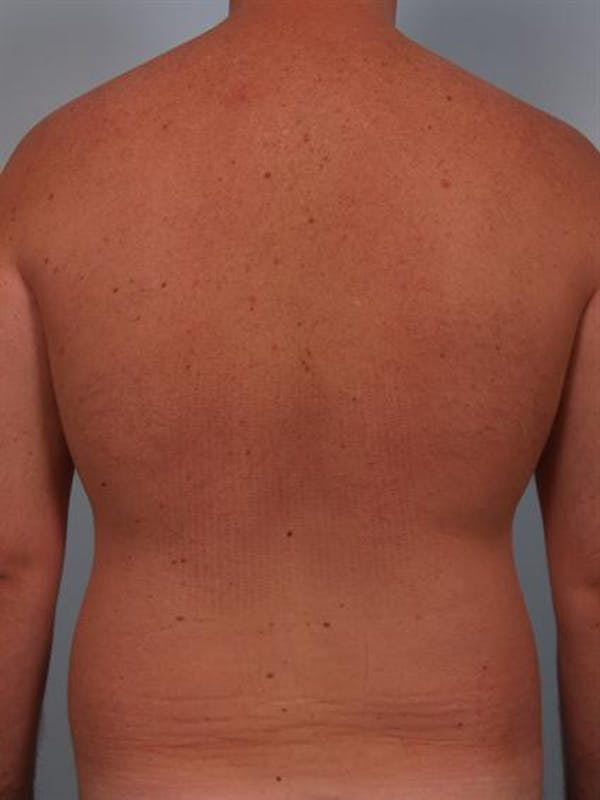 Power Assisted Liposuction Gallery - Patient 1310769 - Image 7