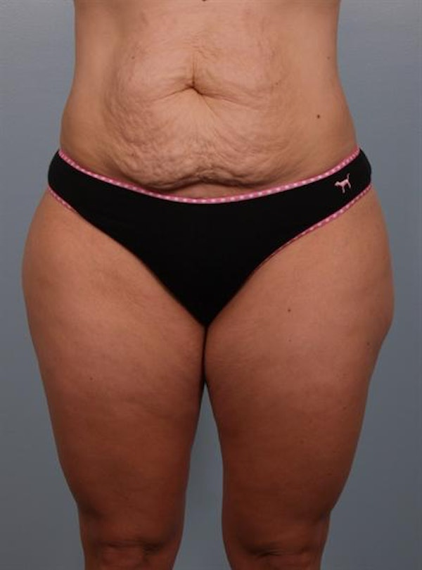 Tummy Tuck Gallery - Patient 1310767 - Image 7