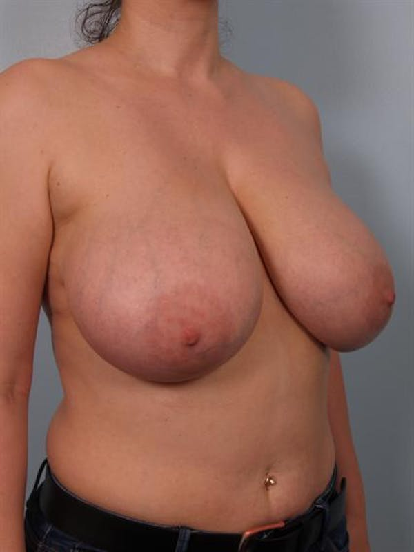 Breast Reduction Gallery - Patient 1310770 - Image 5