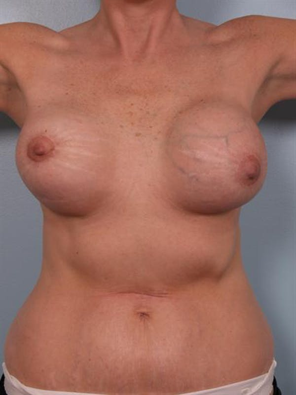 Complex Breast Revision Gallery - Patient 1310774 - Image 1