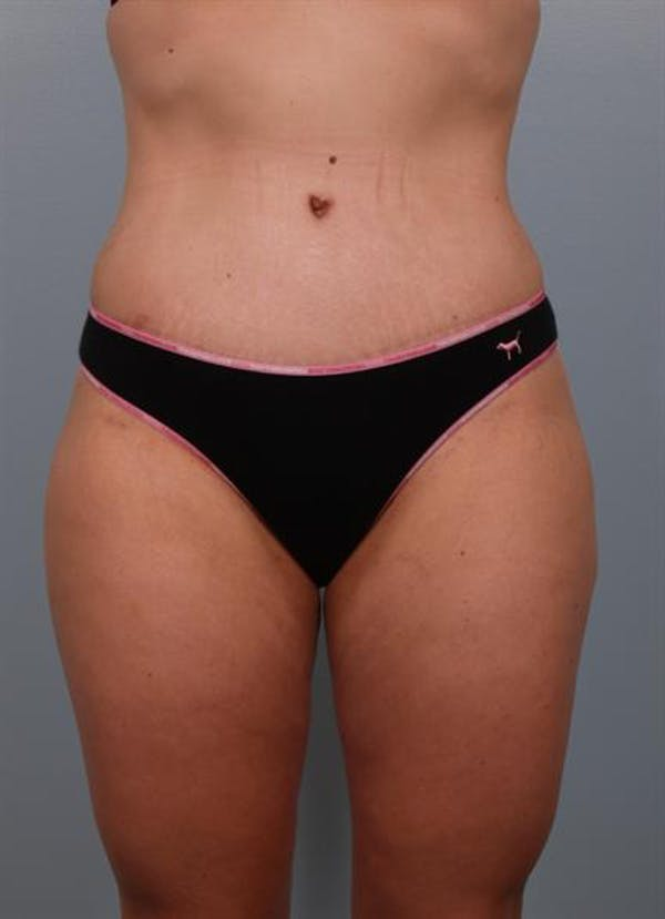 Tummy Tuck Gallery - Patient 1310767 - Image 8