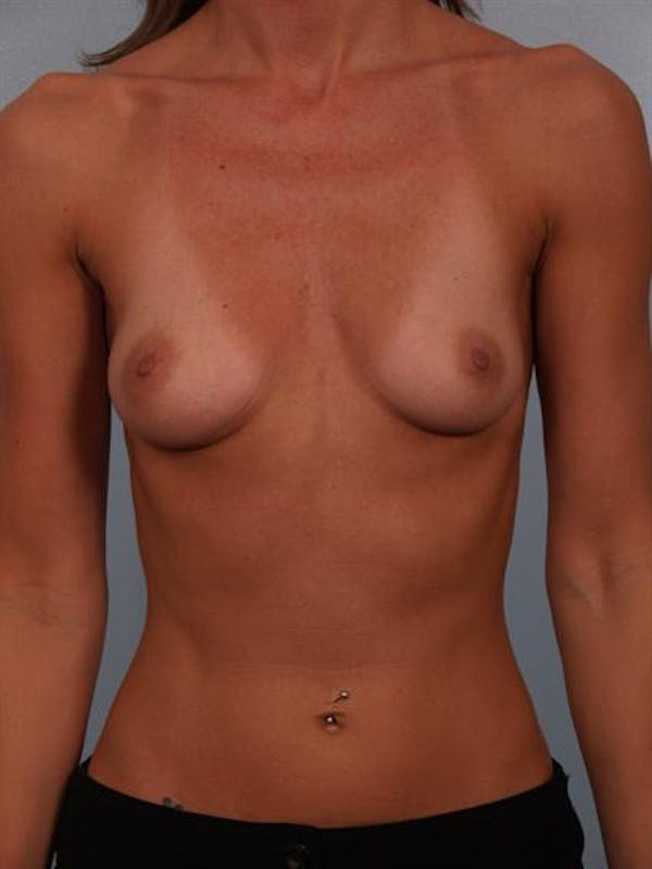 Breast Augmentation Gallery - Patient 1310775 - Image 1