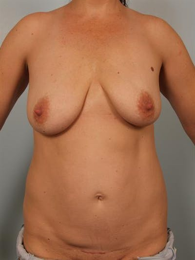 Mommy Makeover Gallery - Patient 1310771 - Image 1
