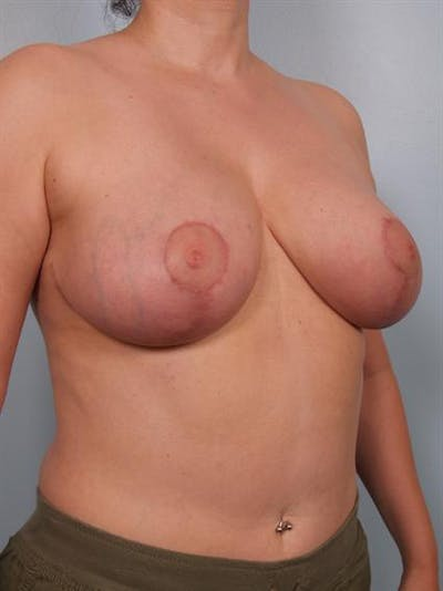 Breast Reduction Gallery - Patient 1310770 - Image 6