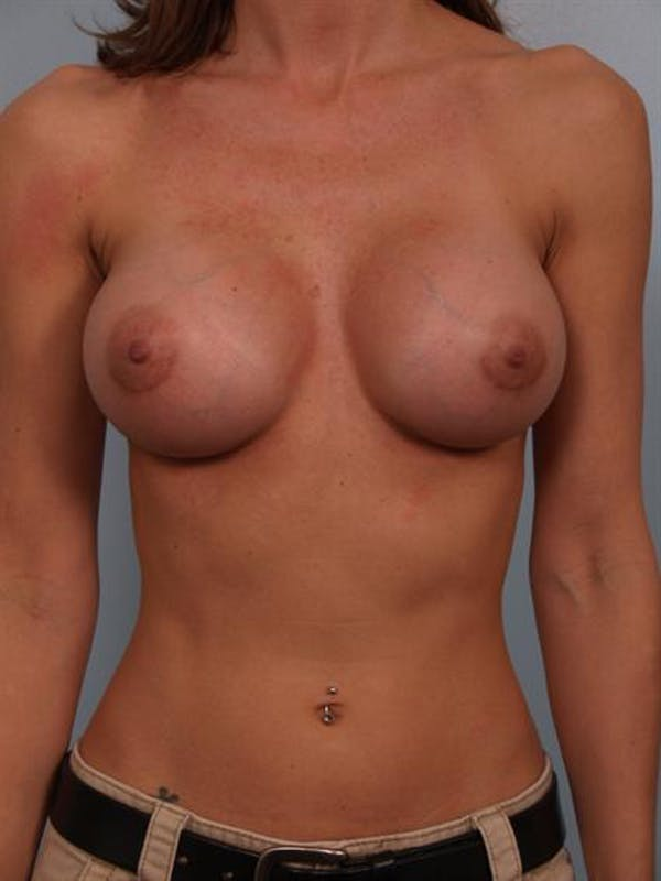 Breast Augmentation Gallery - Patient 1310775 - Image 2