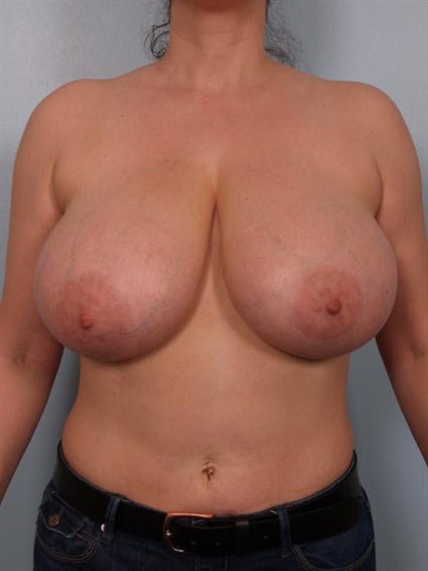 Breast Reduction Gallery - Patient 1310770 - Image 1
