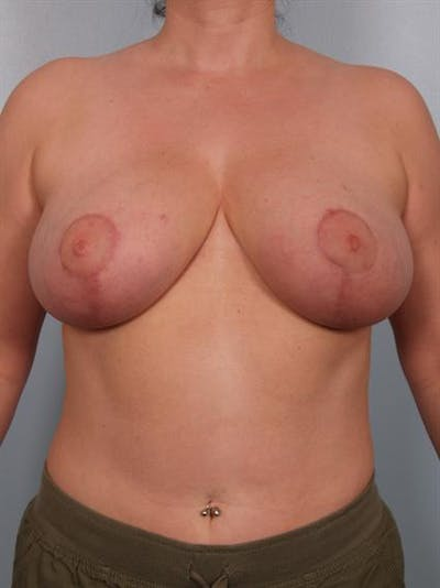 Breast Reduction Gallery - Patient 1310770 - Image 2