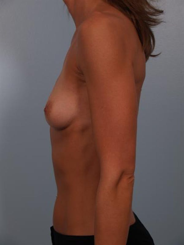 Breast Augmentation Gallery - Patient 1310775 - Image 3