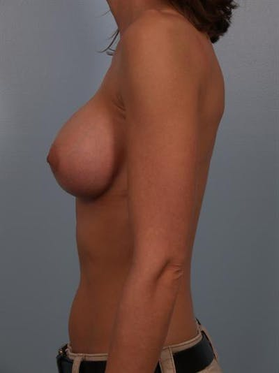 Breast Augmentation Gallery - Patient 1310775 - Image 4
