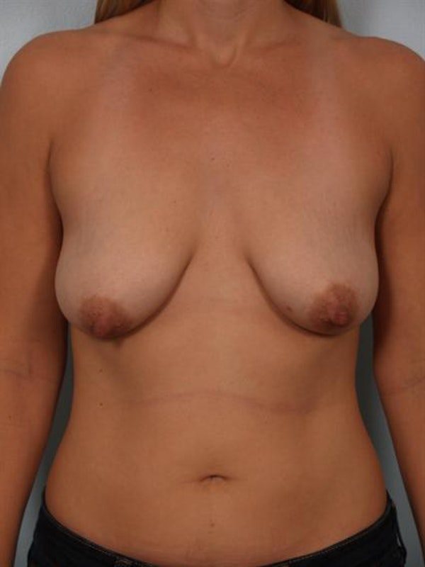 Breast Lift Gallery - Patient 1310773 - Image 1