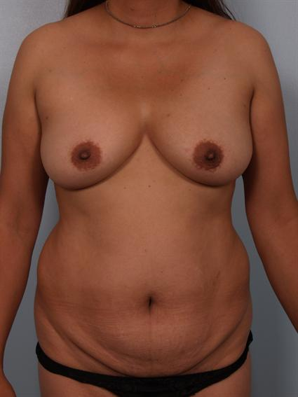 Image4 - Before and after image of Power Assisted Liposuction by Dr. Cohen.