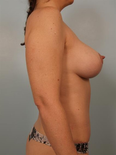 Mommy Makeover Gallery - Patient 1310771 - Image 6