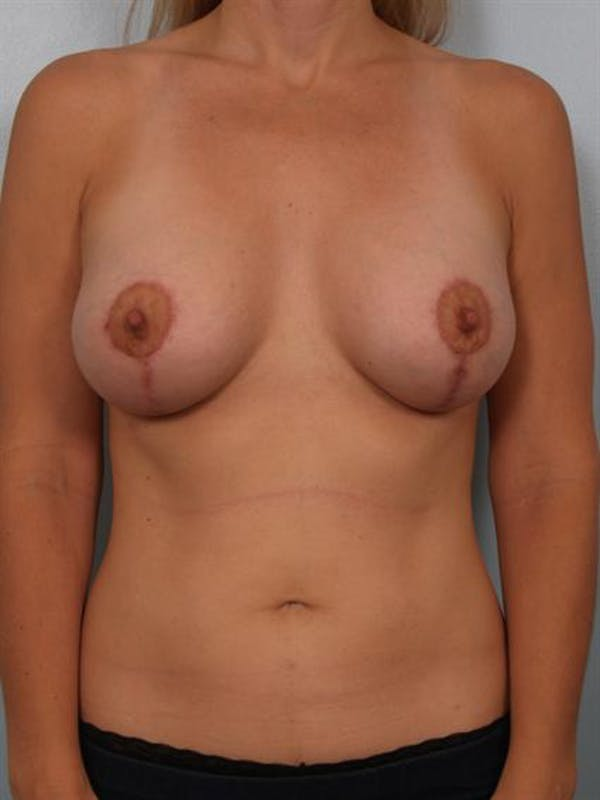 Breast Lift Gallery - Patient 1310773 - Image 2