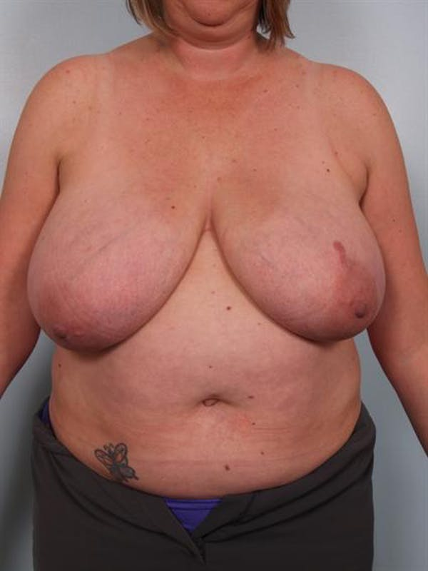 Breast Reduction Gallery - Patient 1310776 - Image 1