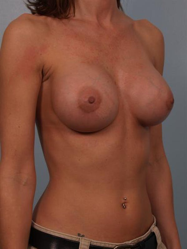 Breast Augmentation Gallery - Patient 1310775 - Image 6