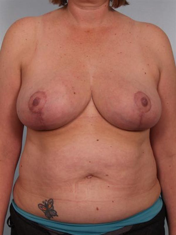 Breast Reduction Gallery - Patient 1310776 - Image 2