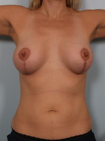 Breast Lift Gallery - Patient 1310773 - Image 6