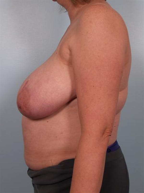 Breast Reduction Gallery - Patient 1310776 - Image 3