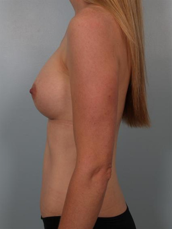 Mommy Makeover Gallery - Patient 1310777 - Image 4