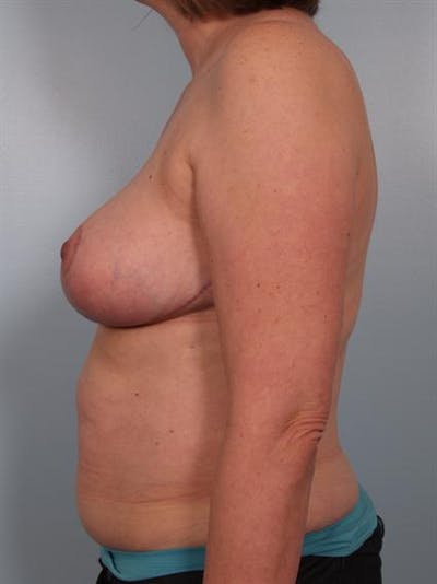 Breast Reduction Gallery - Patient 1310776 - Image 4
