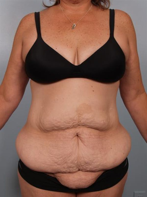 Tummy Tuck Gallery - Patient 1310780 - Image 1