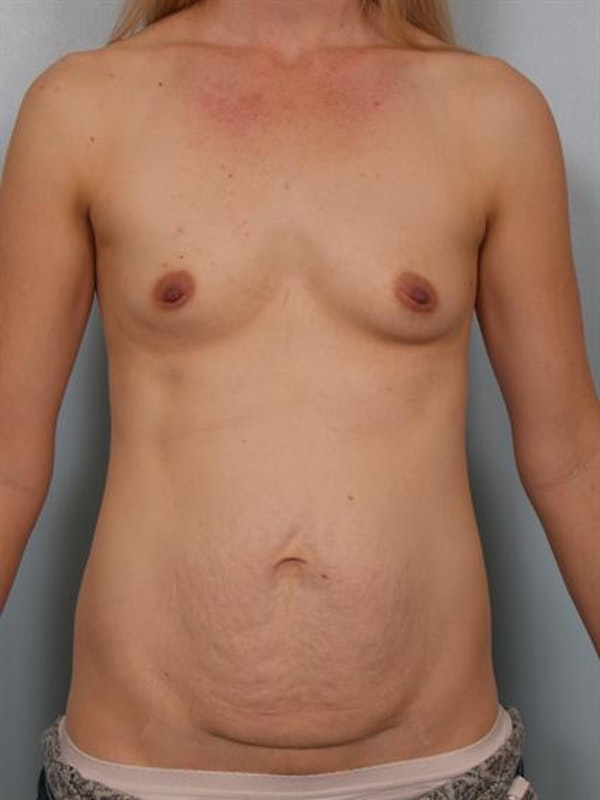 Mommy Makeover Gallery - Patient 1310777 - Image 1