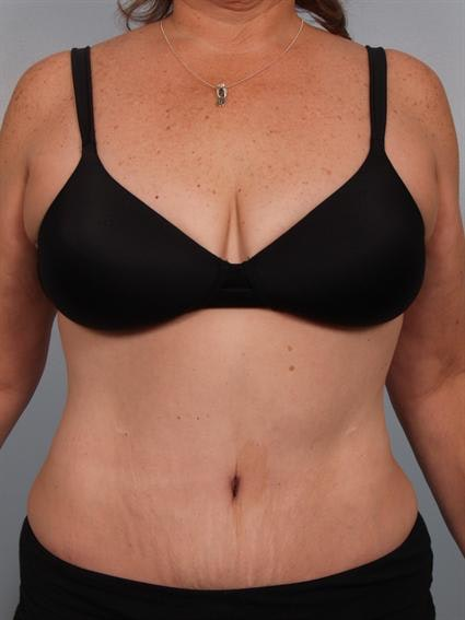 Tummy Tuck Gallery - Patient 1310780 - Image 2