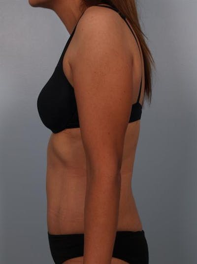 Power Assisted Liposuction Gallery - Patient 1310778 - Image 6