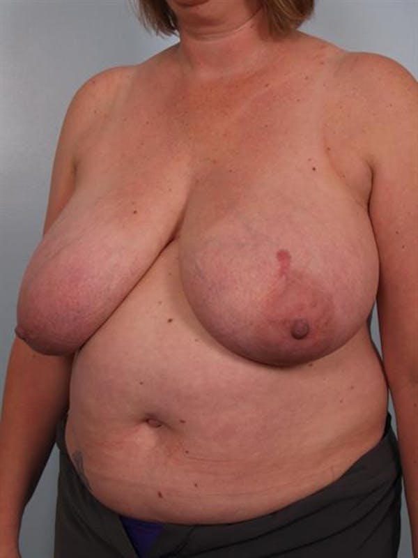 Breast Reduction Gallery - Patient 1310776 - Image 5