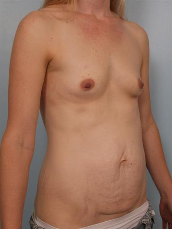 Mommy Makeover Gallery - Patient 1310777 - Image 5