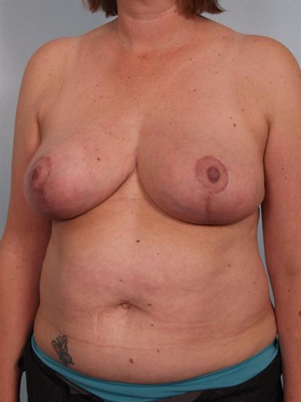 Breast Reduction Gallery - Patient 1310776 - Image 6
