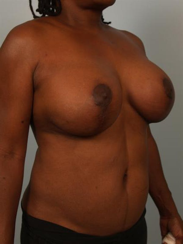 Complex Breast Revision Gallery - Patient 1310781 - Image 4