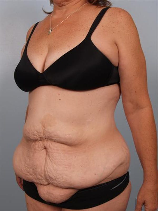 Tummy Tuck Gallery - Patient 1310780 - Image 3