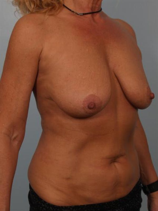 Breast Lift Gallery - Patient 1310779 - Image 5