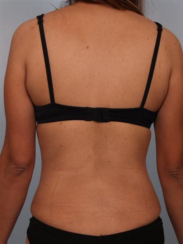 Power Assisted Liposuction Gallery - Patient 1310778 - Image 8