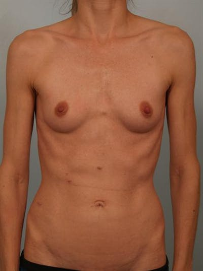 Breast Augmentation Gallery - Patient 1310786 - Image 1