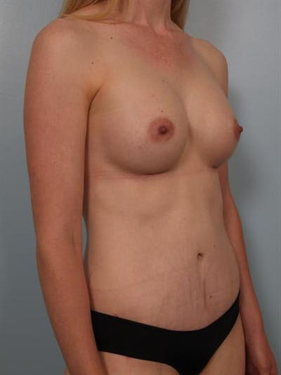 Mommy Makeover Gallery - Patient 1310777 - Image 6