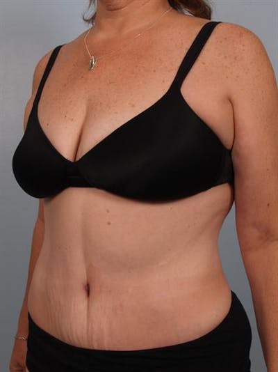 Tummy Tuck Gallery - Patient 1310780 - Image 4