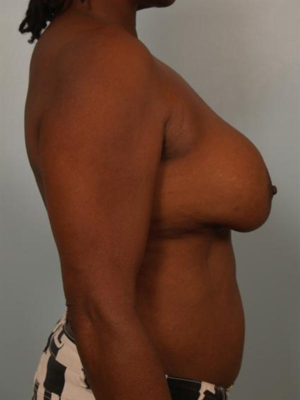 Complex Breast Revision Gallery - Patient 1310781 - Image 5