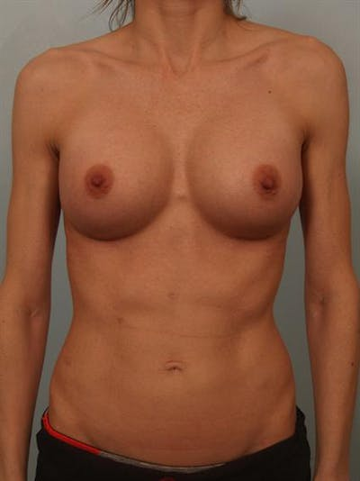 Breast Augmentation Gallery - Patient 1310786 - Image 2