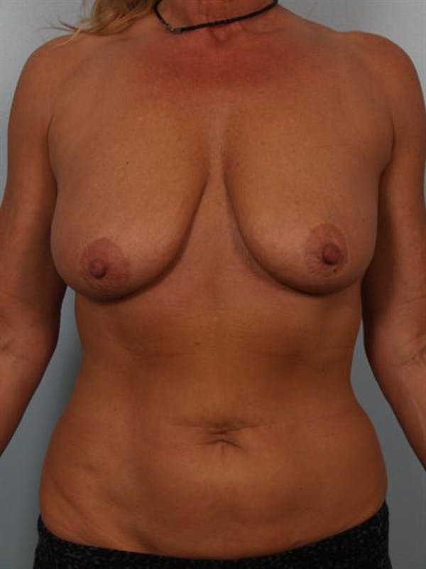 Breast Lift Gallery - Patient 1310779 - Image 1