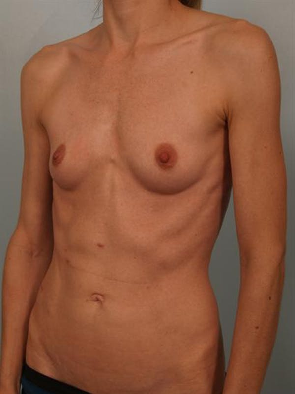 Breast Augmentation Gallery - Patient 1310786 - Image 3