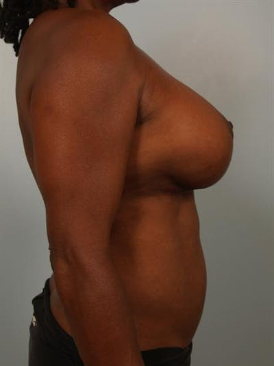 Complex Breast Revision Gallery - Patient 1310781 - Image 6