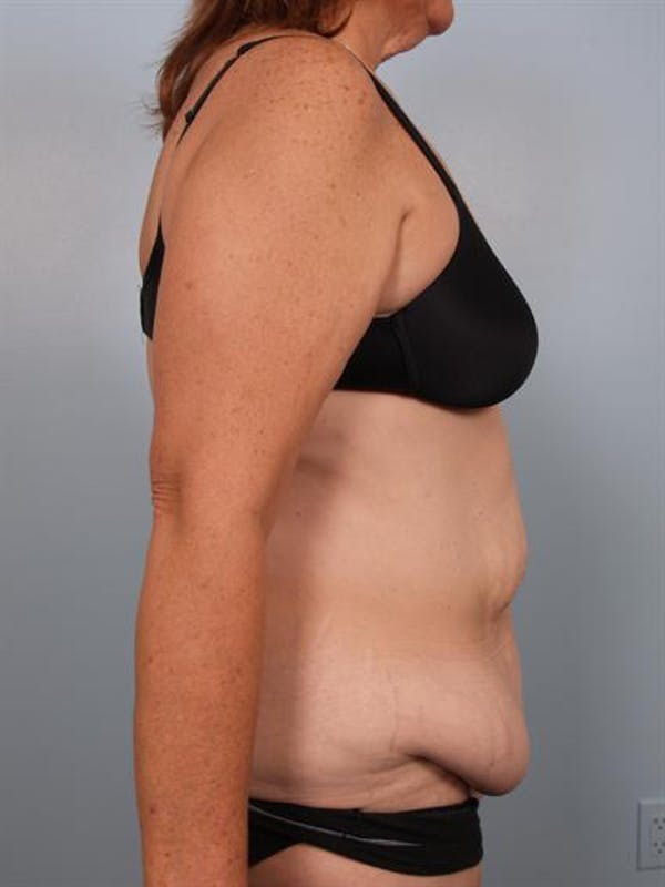 Tummy Tuck Gallery - Patient 1310780 - Image 5