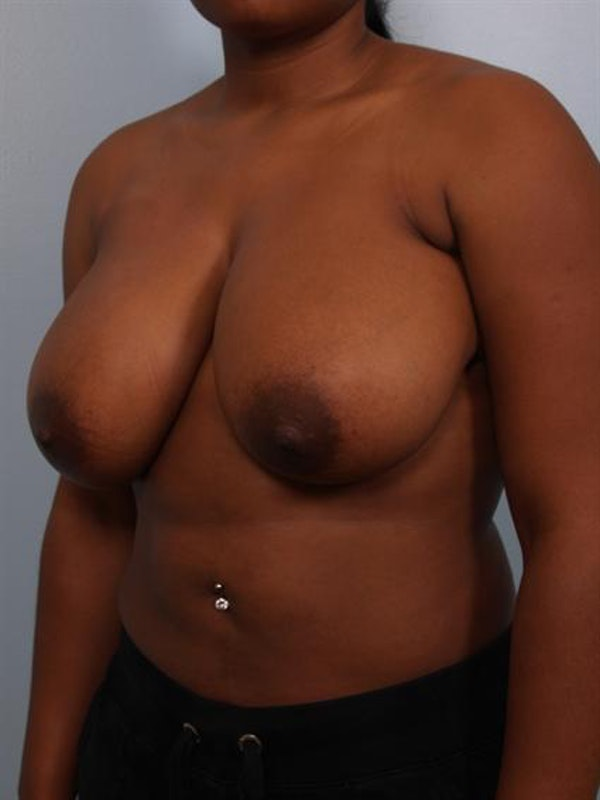 Breast Reduction Gallery - Patient 1310785 - Image 3