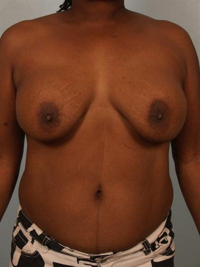 Complex Breast Revision Gallery - Patient 1310781 - Image 1